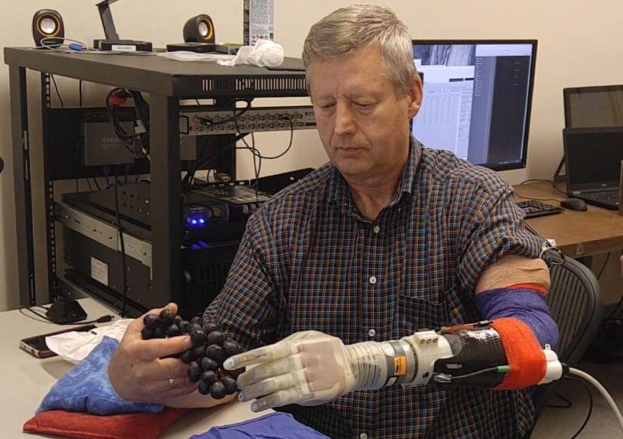 Prosthetic Arm Modeled After Luke Skywalker